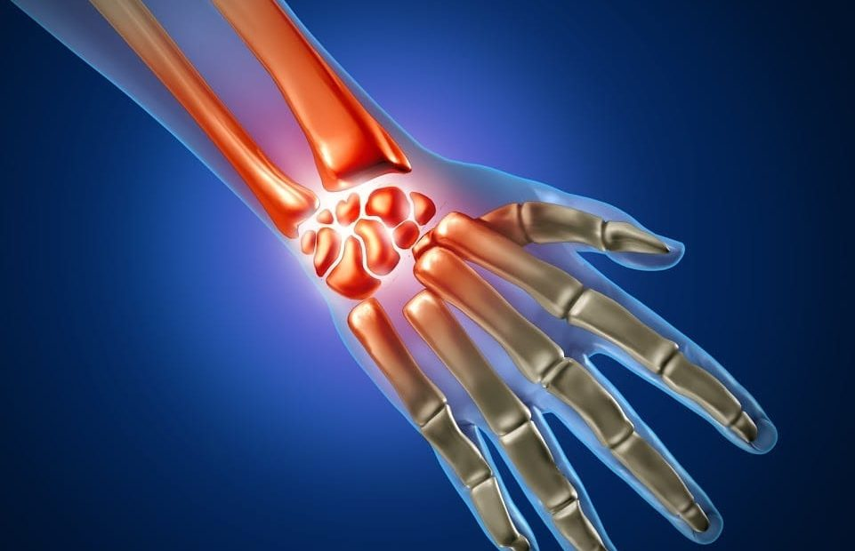 midwest carpal tunnel syndrome skeleton